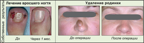 Лечение ран после удаления родинки